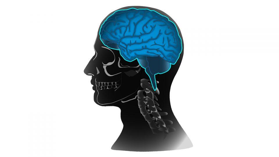 brain shot_